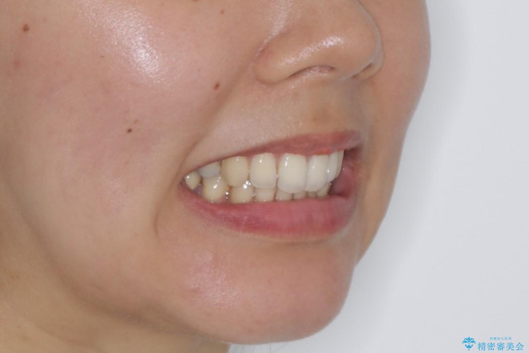 前歯のガタガタをキレイに (費用を抑えたメタル装置)の治療後(顔貌)