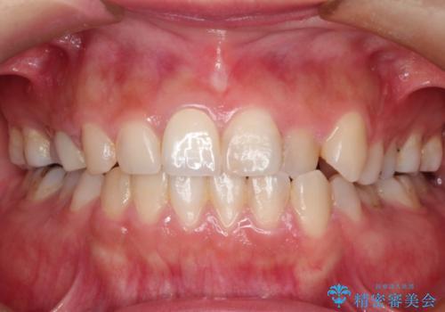 前歯が痛い。神経の治療とセラミッククラウンの治療後