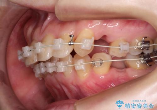全顎矯正+セラミック治療による口腔内の総合リコンストラクションの治療中
