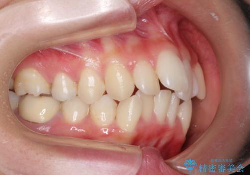 前歯のガタガタをキレイに (費用を抑えたメタル装置)の治療前