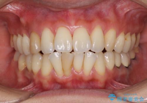 変色した前歯をセラミッククラウンで自然な前歯にの治療前