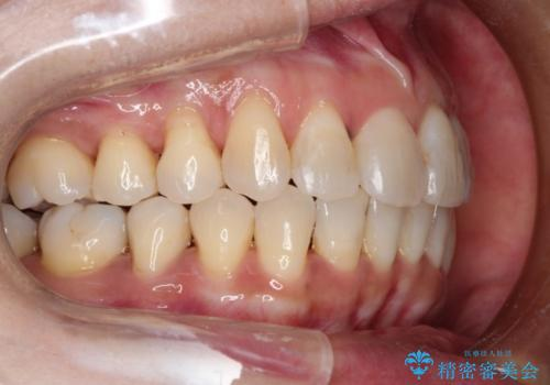 インビザラインによるかみ合わせの治療 奥歯の位置関係を是正してガタつきを治すの症例 治療後
