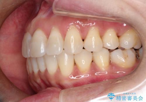 インビザラインによるかみ合わせの治療 奥歯の位置関係を是正してガタつきを治すの治療後
