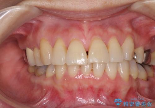 歯ぐきがこれ以上下がるのがいやだ 歯肉移植による根面被覆と歯肉退縮の予防の治療前