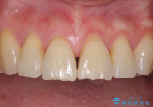 歯ぐきがこれ以上下がるのがいやだ 歯肉移植による根面被覆と歯肉退縮の予防の症例 治療前
