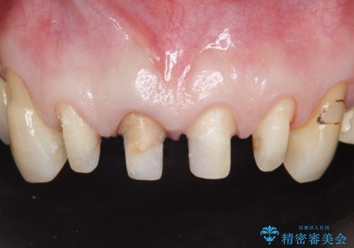 オールセラミッククラウン 前歯の見た目の改善の治療中