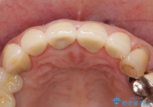 オールセラミッククラウン 前歯の見た目の改善の治療後