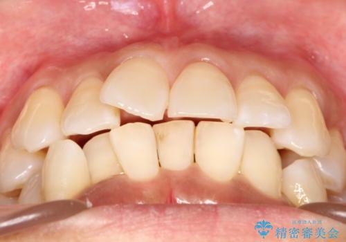 インビザラインによるかみ合わせの治療 奥歯の位置関係を是正してガタつきを治すの治療前