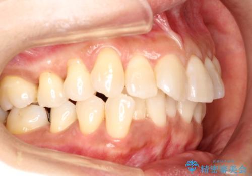 インビザラインによるかみ合わせの治療 奥歯の位置関係を是正してガタつきを治すの症例 治療前