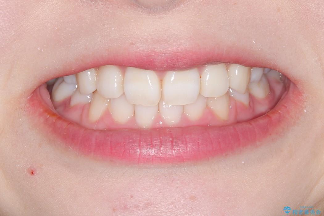 ハーフリンガル 矯正 抜歯して口元の改善を!の治療後(顔貌)