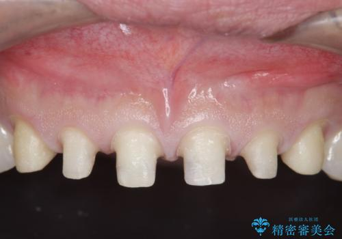 オールセラミッククラウン 上顎前歯部の隙間をセラミック矯正での治療中