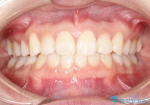 ハーフリンガル 矯正 抜歯して口元の改善を!の症例 治療後