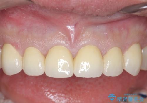 オールセラミッククラウン 上顎前歯部の隙間をセラミック矯正での治療後