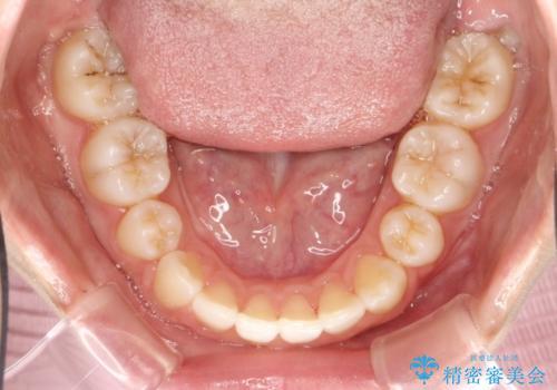 ハーフリンガル 矯正 抜歯して口元の改善を!の治療後