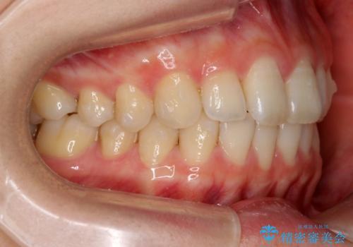 前歯のわずかなねじれ 歯を削らずマウスピースで インビザライン・ライトで手軽にの治療中