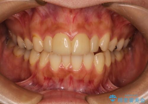 他院でつけた上の前歯4本ラミネートべニアをオールセラミックにの症例 治療前