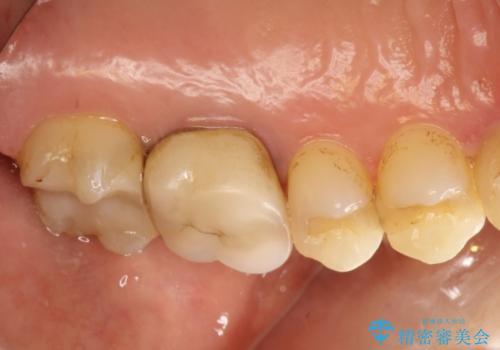 奥歯にものが詰まる 最後方臼歯の被せもので改善するの治療前