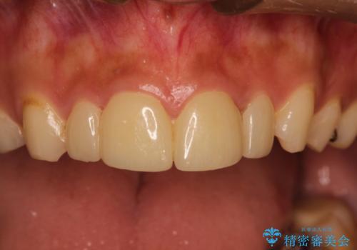 他院でつけた上の前歯4本ラミネートべニアをオールセラミックにの治療前