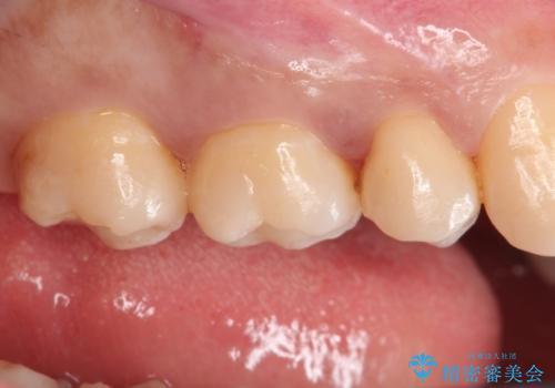矯正後により美しい歯への治療後