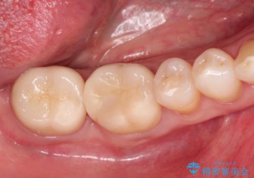 奥歯の再治療 根管治療からやり直す&セラミックできれいに咬合回復の治療後