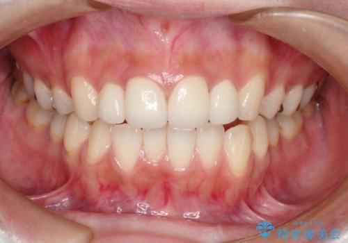 他院でつけた上の前歯4本ラミネートべニアをオールセラミックにの症例 治療後