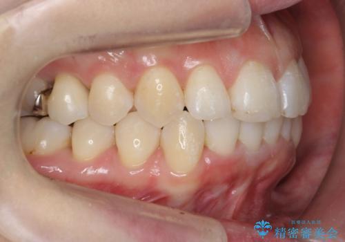 30代女性 インビザラインで前歯をキレイに マウスピース矯正の治療後