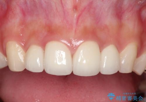 他院でつけた上の前歯4本ラミネートべニアをオールセラミックにの治療後