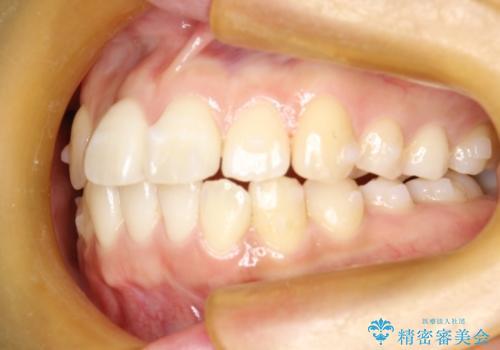 インビザライン治療 ガタつきの改善と一緒に、なるべく前歯を下げたいの治療中