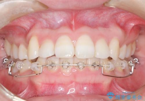 ハーフリンガル 矯正 抜歯して口元の改善を!の治療中