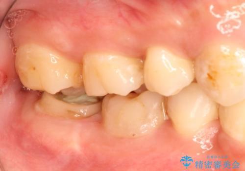 治療してもすぐに外れる歯。歯周外科後に、セラミッククラウンで解決!の症例 治療前