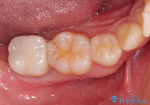 最後方臼歯の深い虫歯 歯周外科で保存するの治療後