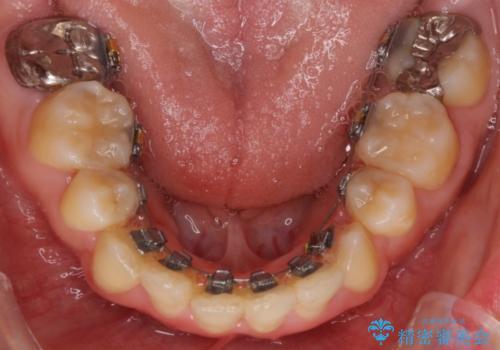 前歯がガタガタで食べ物が咬み切れない フルリンガルによる裏側矯正の治療中