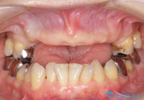 金属床義歯・PGA(ゴールド)クラウン 合わない入れ歯の新製 の治療中