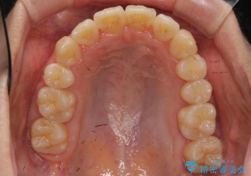 右だけ八重歯 最少限の抜歯の治療後