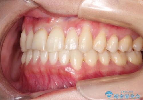 インビザラインで飛び出た歯をキレイに並べるの治療後