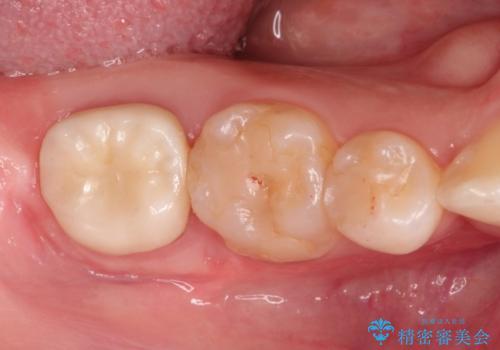 治療してもすぐに外れる歯。歯周外科後に、セラミッククラウンで解決!の治療後