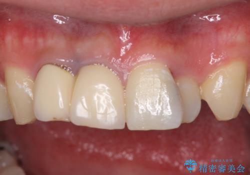 転勤する前に前歯を治したい 抜歯とセラミックブリッジの治療前