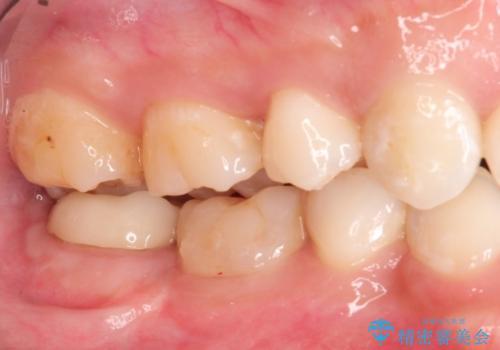 治療してもすぐに外れる歯。歯周外科後に、セラミッククラウンで解決!の症例 治療後
