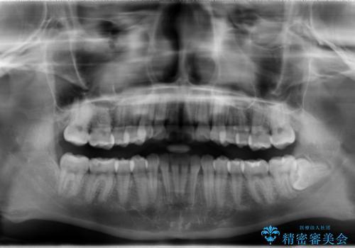 インビザライン治療 ガタつきの改善と一緒に、なるべく前歯を下げたいの治療後
