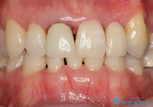 接着ブリッジ 虫歯再発によるやりかえの治療前