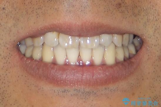 マウスピース矯正の代名詞 インビザラインによる前歯のクロスバイト治療の治療後(顔貌)