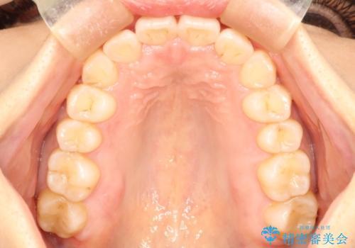 インビザライン治療 ガタつきの改善と一緒に、なるべく前歯を下げたいの症例 治療後