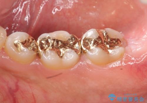 高い適合と化学的安定性 ゴールドインレー修復の治療後