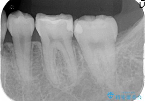精度の高いむし歯治療。の治療前