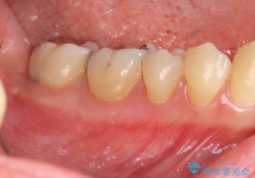 深い虫歯 神経の温存 セラミック治療の治療前