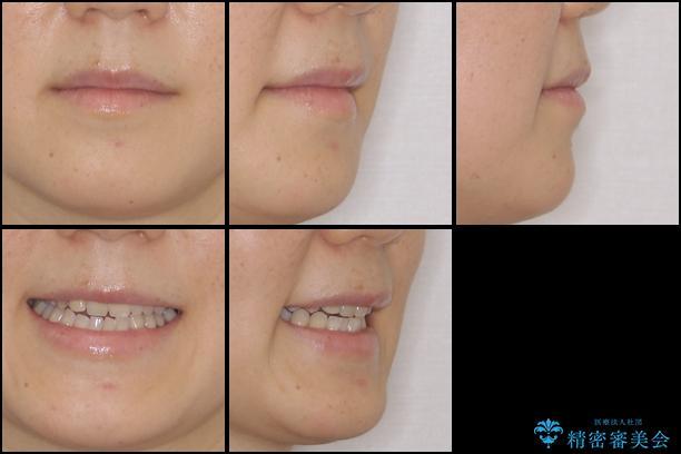 前歯の歯並びと小さい歯を改善 インビザラインとオールセラミッククラウンの治療前(顔貌)