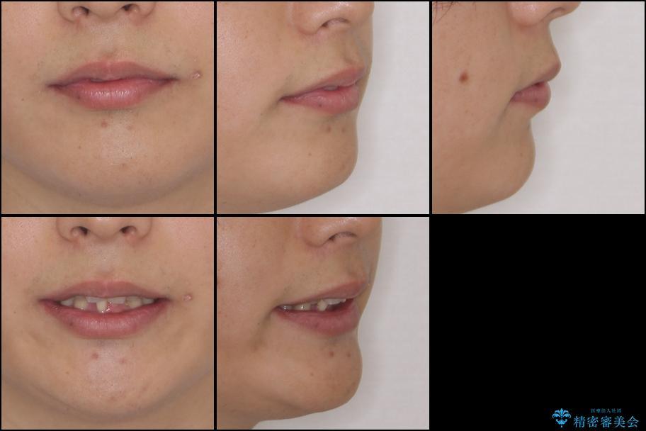 前歯のでこぼこを治したい ワイヤー矯正からインビザラインへのチェンジの治療前(顔貌)