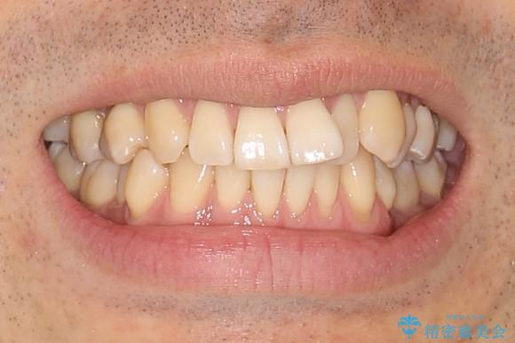 変則的なかみ合わせ インビザラインによるかみ合わせとガタつきの治療の治療前(顔貌)