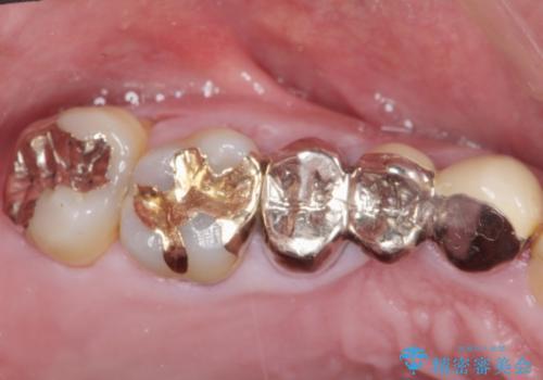 多発した縁下カリエス 歯周外科を併用する虫歯治療の治療前