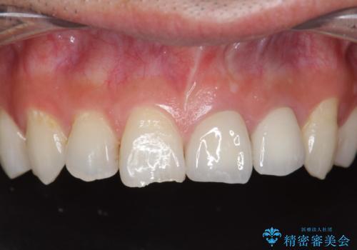 前歯 保険適応クラウンからジルコニアクラウンへのやりかえの症例 治療後